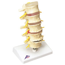 Anatomical Model - Vertebrae Degeneration and Stages of Prolapsed Disc on Mounted Base