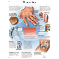 Rheumatic Diseases Anatomical Laminated Chart - 20