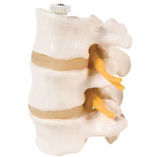 Anatomical Model - Flexible 3 Lumbar Vertebrae